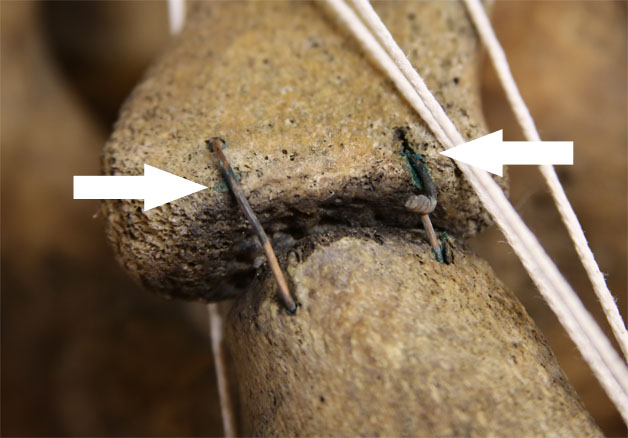 Copper corrosion staining on bone
