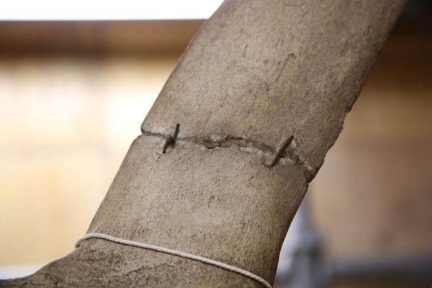 Old repair on vertebrae (wire and adhesive)