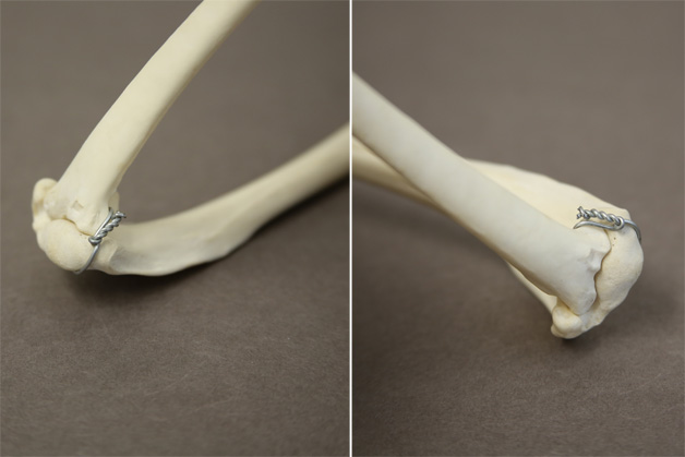Twisted wire end fastening